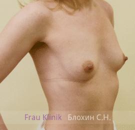 Увеличение груди 118