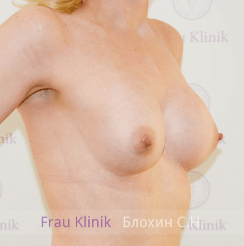 Увеличение груди 119