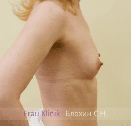 Увеличение груди 120