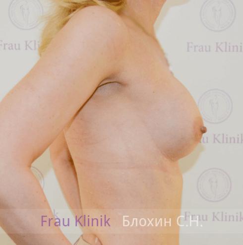 Увеличение груди 121