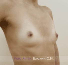 Увеличение груди 174