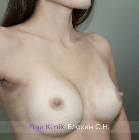 Увеличение имплантами 46