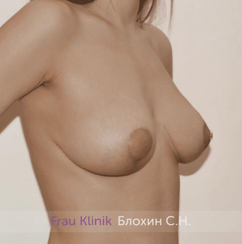 Уменьшение груди 50