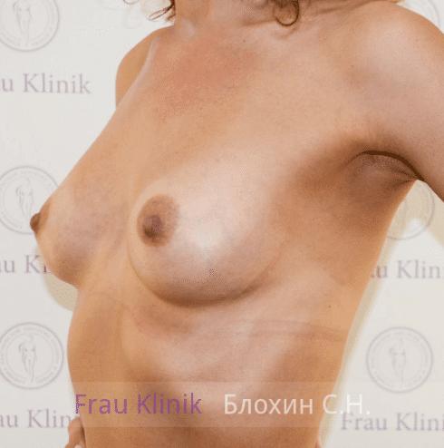 Увеличение груди 21