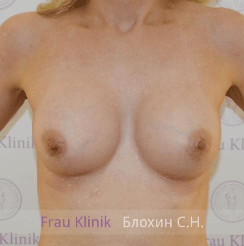 Увеличение груди 117