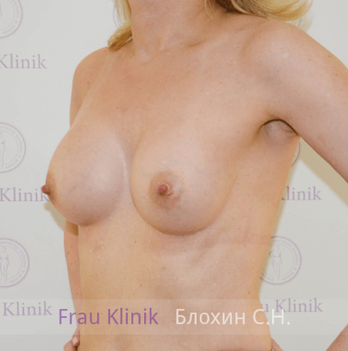 Увеличение груди 115