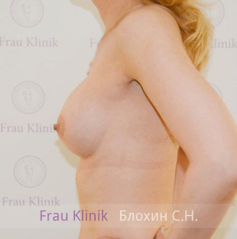 Увеличение груди 113