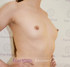 Увеличение груди 14