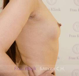 Увеличение груди 16