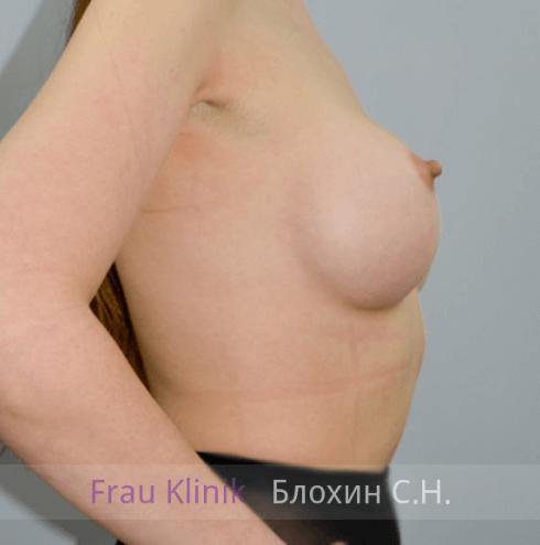 Увеличение груди 17