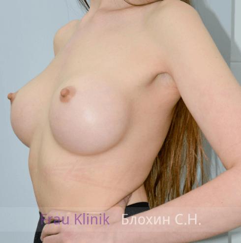 Увеличение груди 11