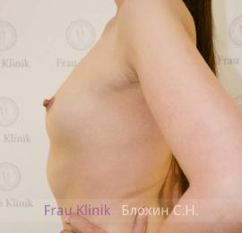 Увеличение груди 8