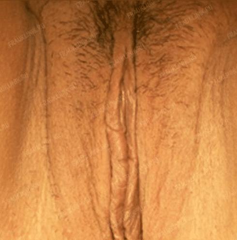Лабиопластика 23