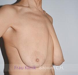 Уменьшение груди 19