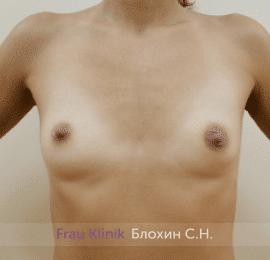 Увеличение имплантами 45