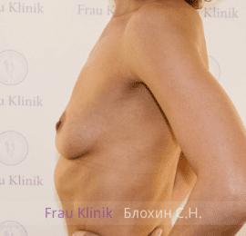Увеличение груди 18