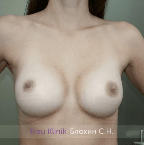 Увеличение имплантами 44
