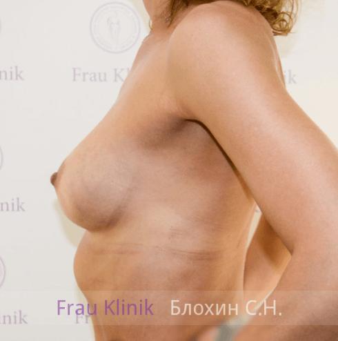 Увеличение груди 19