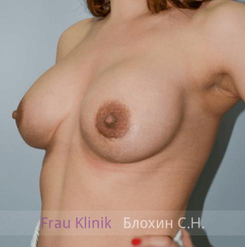 Увеличение груди 125