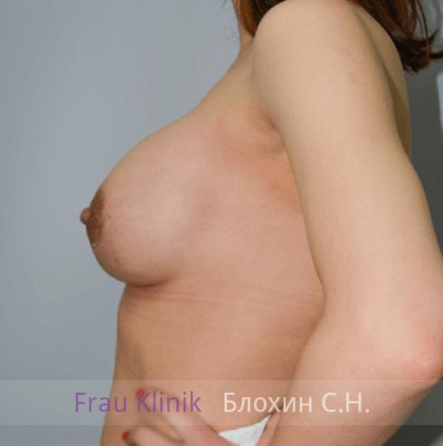Увеличение груди 123