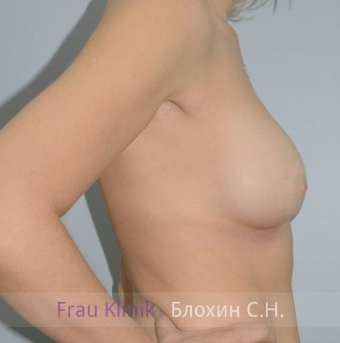 Увеличение груди 135