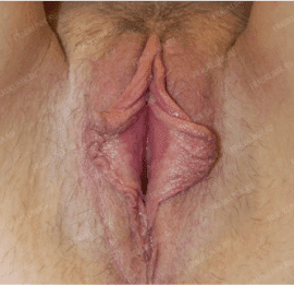 Лабиопластика 24