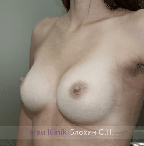 Увеличение груди 171