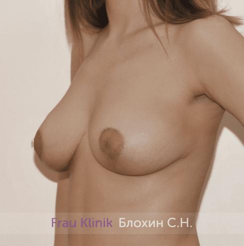 Уменьшение груди 44