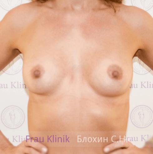 Увеличение груди 23