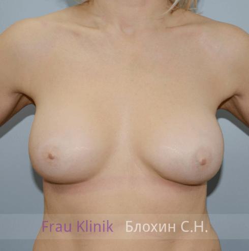 Увеличение груди 131