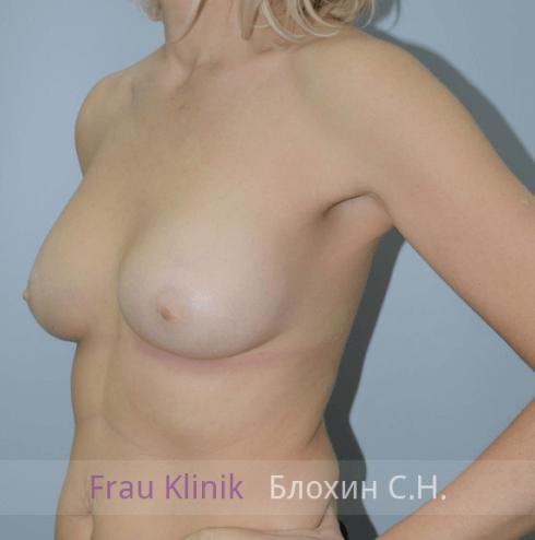 Увеличение груди 129