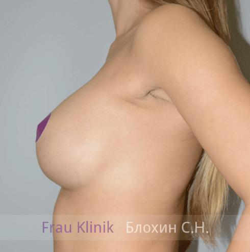 Увеличение груди 137