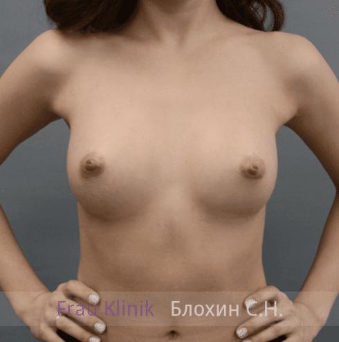 Увеличение груди 151