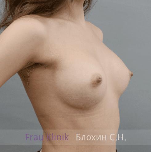 Увеличение груди 153