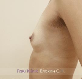 Увеличение груди 168
