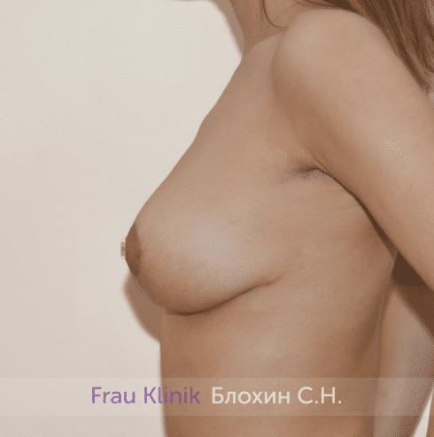 Уменьшение груди 42