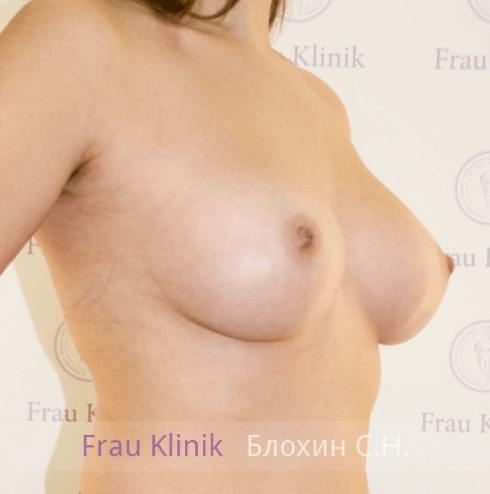 Увеличение груди 31
