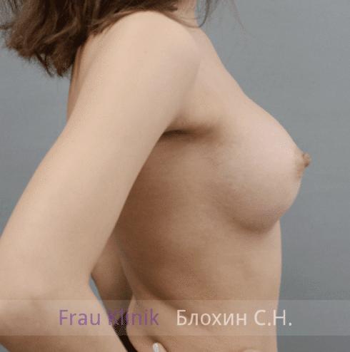 Увеличение груди 155