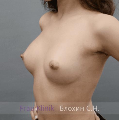 Увеличение груди 149