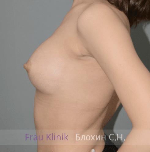Увеличение груди 147