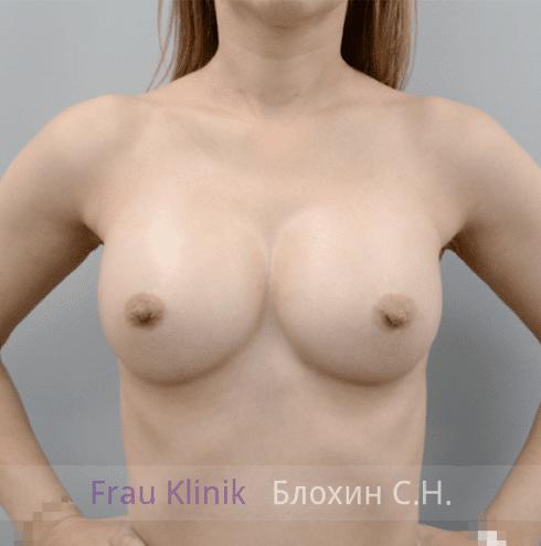 Увеличение груди 159