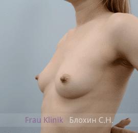 Увеличение груди 156
