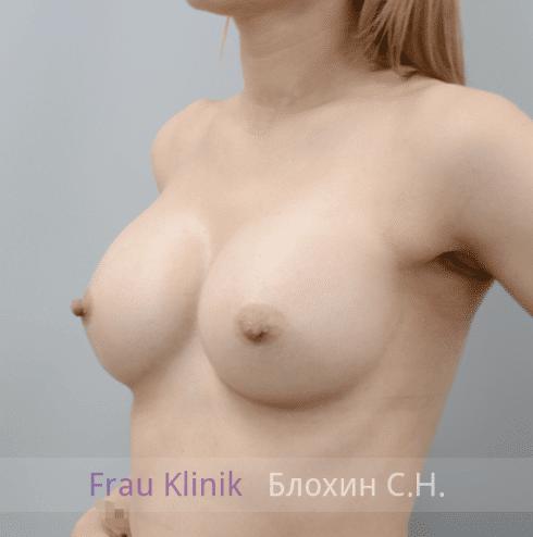Увеличение груди 157