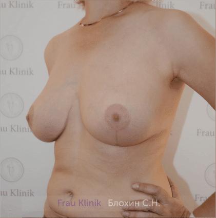 Увеличение груди 133