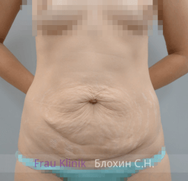 Абдоминопластика 9