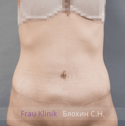 Абдоминопластика 10