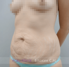 Абдоминопластика 7