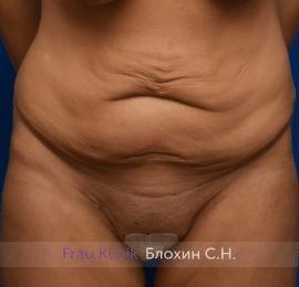 Абдоминопластика 19