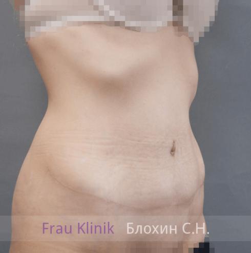 Абдоминопластика 12