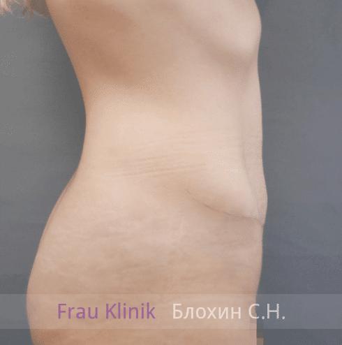 Абдоминопластика 14